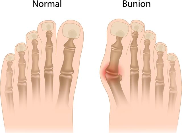 bunion-anatomy